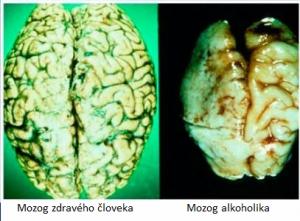 mozog zdraveho cloveka vs. alkoholika