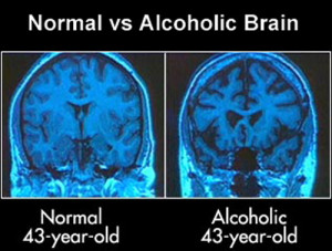 alcohol-brain