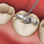Magnetická rezonancia uvoľňuje ortuť zamalgámových zubných plomb