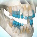 Choroby zubov a ich regenerácia